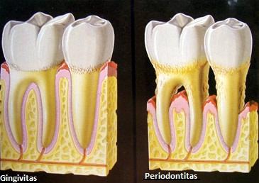 Periodontologinis gydymas